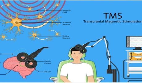 TMS treatment for anxiety