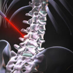 LASER-SPINAL-SUGERY